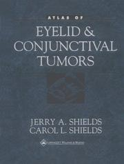Atlas of eyelid and conjunctival tumors by Jerry A. Shields