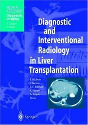 Diagnostic and Interventional Radiology in Liver Transplantation (Medical Radiology / Diagnostic Imaging)
