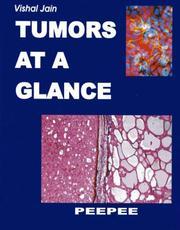Tumors at a Glance PDF