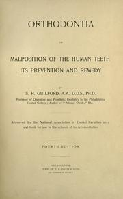 Orthodontia, or, malposition of the human teeth by Simeon Hayden Guilford