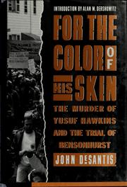 For the color of his skin