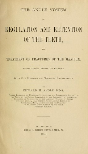 Download The Angle system of regulation and retention of the teeth, and treatment of fractures of the maxillae.