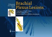 Brachial Plexus Lesions