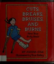 Cover of: Cuts, breaks, bruises, and burns by Joanna Cole