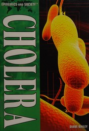 Cover of: Cholera | Diane Bailey