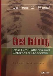 Cover of: Chest radiology | James Croft Reed