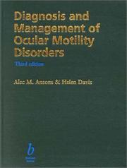 Diagnosis and management of ocular motility disorders by