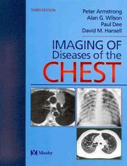 Cover of: Imaging of Diseases of the Chest | David M. Hansell