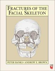 Cover of: Fractures of the Facial Skeleton | Peter Banks