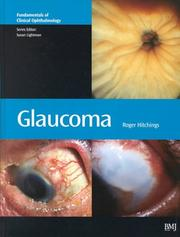 Glaucoma (Fundamentals in Clinical Ophthalmology Series)