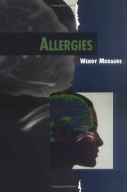Cover of: Allergies (Twenty-First Century Medical Library) | Wendy Moragne