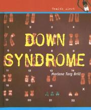 Cover of: Down Syndrome (Health Aleart)