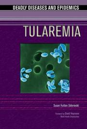 Cover of: Tularemia | Susan Hutton Siderovski