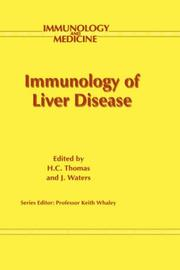Cover of: Immunology of Liver Disease (Immunology and Medicine) |