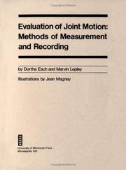 Cover of: Evaluation of joint motion: methods of measurement and recording