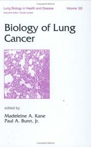 Cover of: Biology of Lung Cancer (Lung Biology in Health & Disease) (Lung Biology in Health and Disease) | Madelein Kane