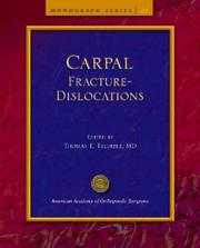 Cover of: Carpal Fracture-Dislocations | Thomas E., M.D. Trumble