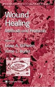 Cover of: Wound healing by