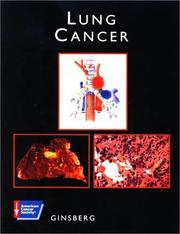 Lung cancer by Robert J. Ginsberg
