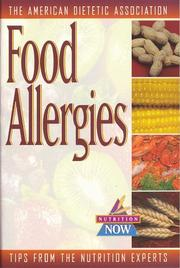 Cover of: Food allergies