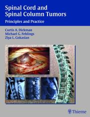 Cover of: Spinal Cord And Spinal Column Tumors |