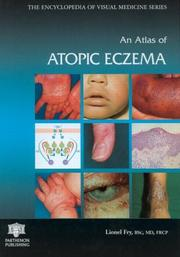 Cover of: An atlas of atopic eczema