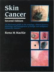 Cover of: Skin Cancer | Rona M. Mackie