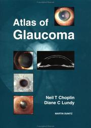 Cover of: Atlas of Glaucoma | Neil T. Choplin