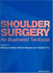 Cover of: Shoulder Surgery | Nikolaus Wulker