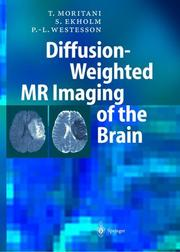 Cover of: Diffusion-Weighted MR Imaging of the Brain | Toshio Moritani