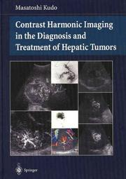 Cover of: Contrast Harmonic Imaging in the Diagnosis and Treatment of Hepatic Tumors | Masatoshi Kudo