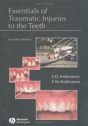Cover of: Essentials of Traumatic Injuries to the Teeth | J. O. Andreasen