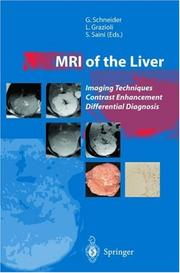 Cover of: Mri of the Liver | G. Schneider