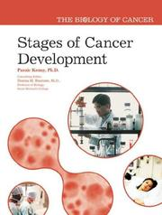 Cover of: Stages of Cancer Development (The Biology of Cancer)