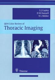 Cover of: Thoracic Imaging (Q&A Color Review) | Sue Copley
