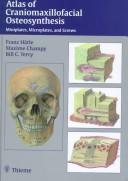 Cover of: Atlas Of Craniomaxillofacial Osteosynthesis | Franz Harle