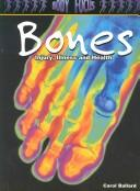 Cover of: Bones: Injury, Illness and Health (Body Focus: the Science of Health, Injury and Disease)
