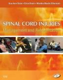 Cover of: Spinal cord injuries | Sue Ann Sisto
