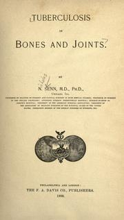 Cover of: Tuberculosis of bones and joints