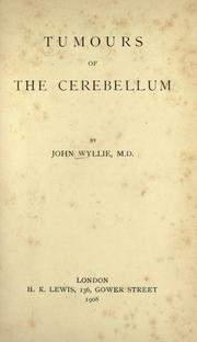 Cover of: Tumours of the cerebellum