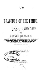 On fracture of the femur.