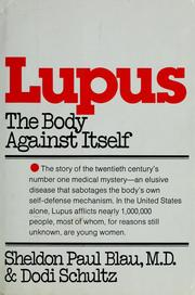 Cover of: Lupus, the body against itself