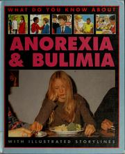 Cover of: Anorexia & bulimia