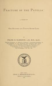 Cover of: Fracture of the patella