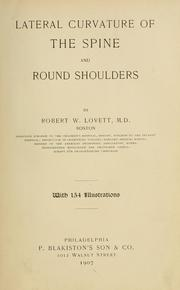 Cover of: Lateral curvature of the spine and round shoulders | Robert W. Lovett
