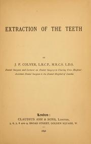 Cover of: Extraction of teeth | Frank Coleman