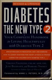 Cover of: Diabetes | Virginia Valentine