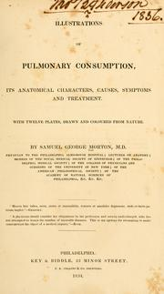 Cover of: Illustrations of pulmonary consumption