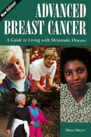 Cover of: Advanced breast cancer | Musa Mayer