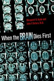 Cover of: When the Brain Dies First (Single Titles-Science)